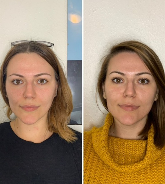 before-and-after-4-monthly-hydrafacials.png