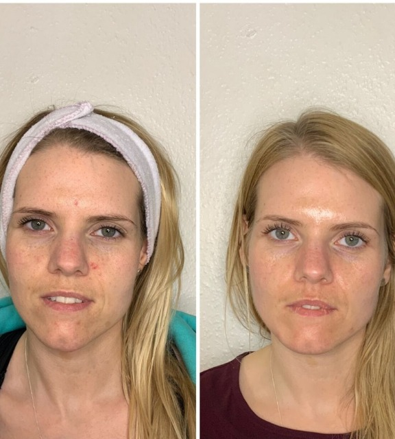 before-and-after-hydrafacial-course-for-pigmentation.png