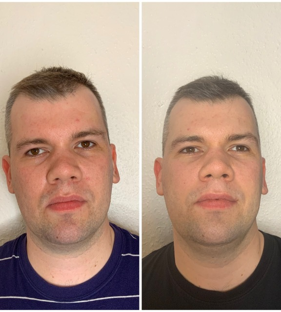 before-and-after-2-innopen-treatments.png