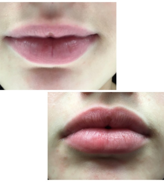 before-and-after-1-perk-lip-treatment.png